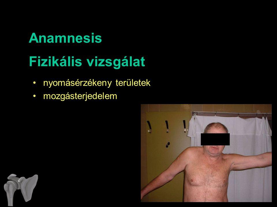 Anamnesis Fizikális vizsgálat nyomásérzékeny területek