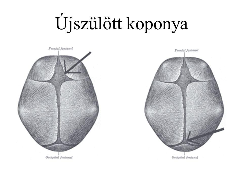 Újszülött koponya