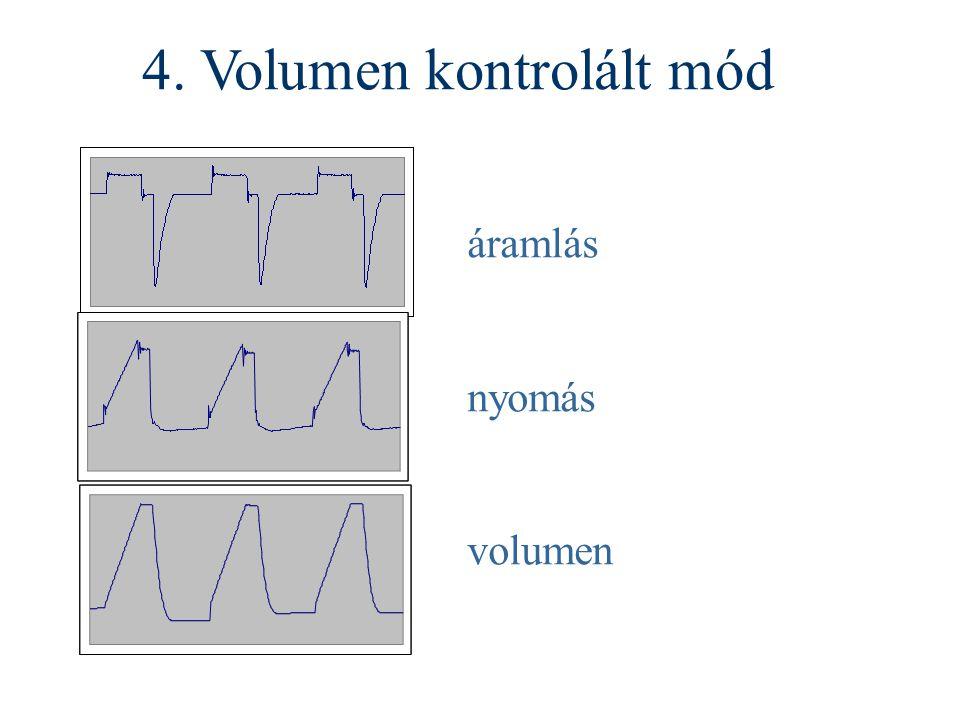 4. Volumen kontrolált mód