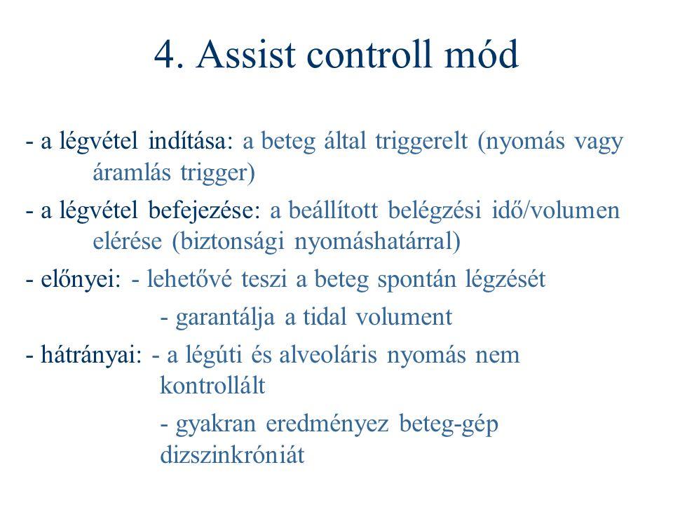 4. Assist controll mód - a légvétel indítása: a beteg által triggerelt (nyomás vagy áramlás trigger)