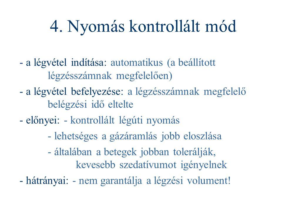 4. Nyomás kontrollált mód