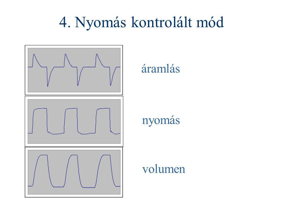 4. Nyomás kontrolált mód áramlás nyomás volumen
