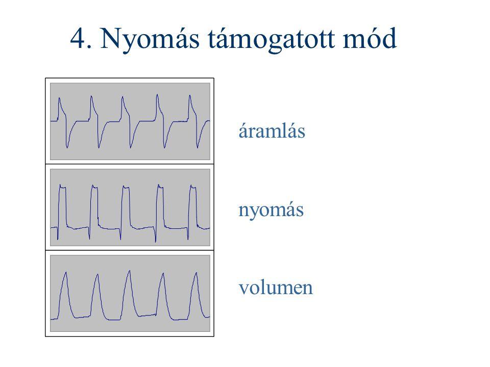 4. Nyomás támogatott mód áramlás nyomás volumen