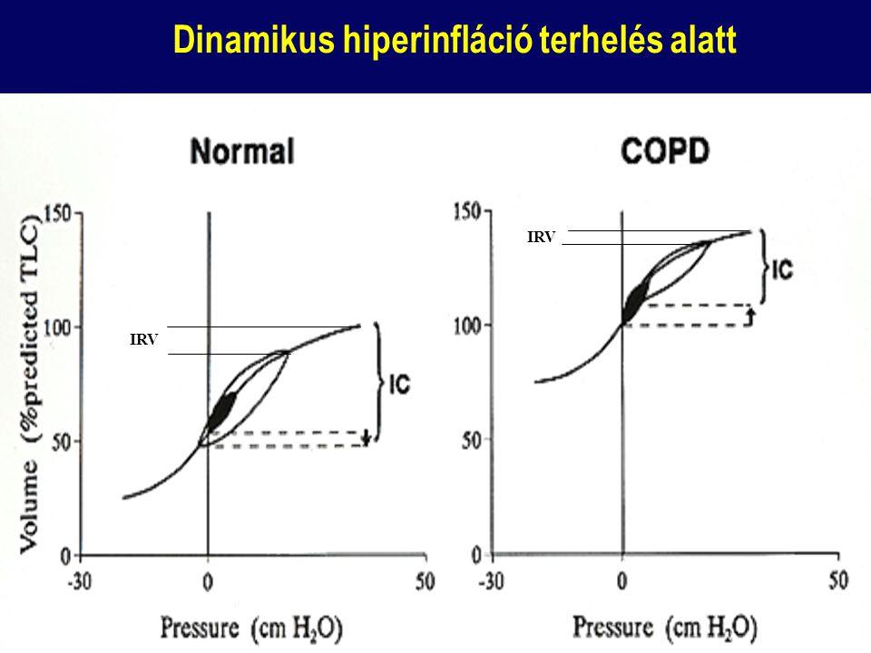 Dinamikus hiperinfláció terhelés alatt