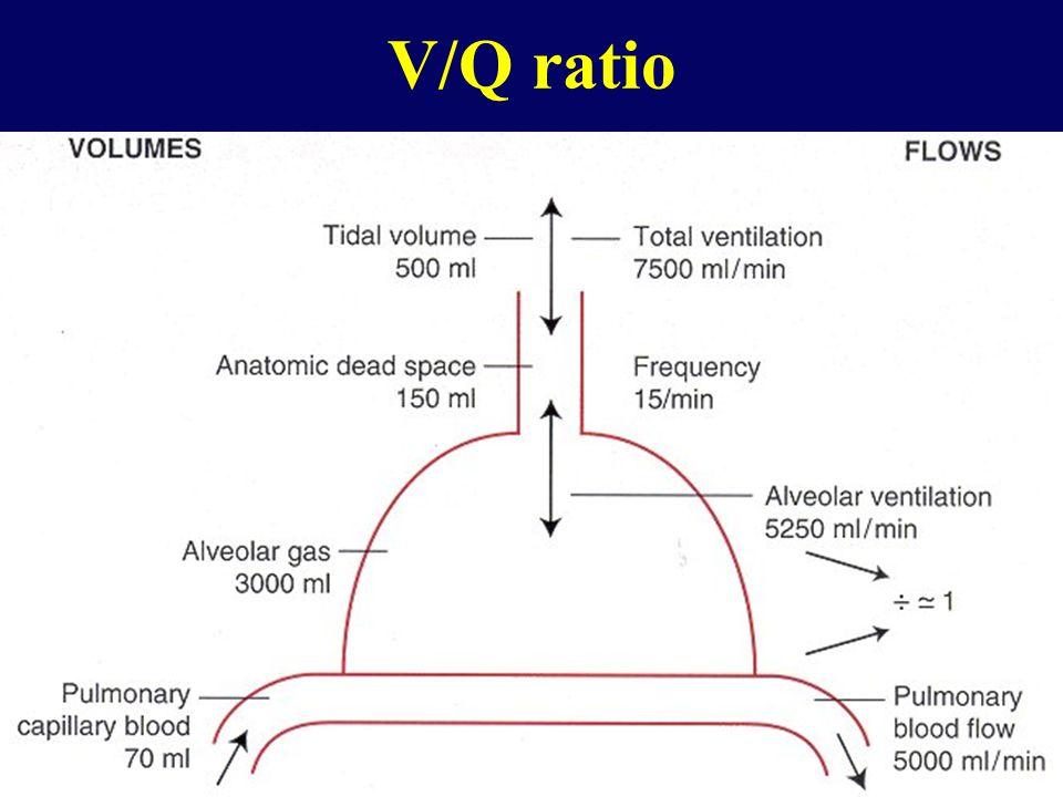 V/Q ratio