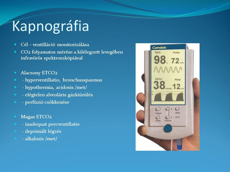 Kapnográfia Cél – ventilláció monitorizálása
