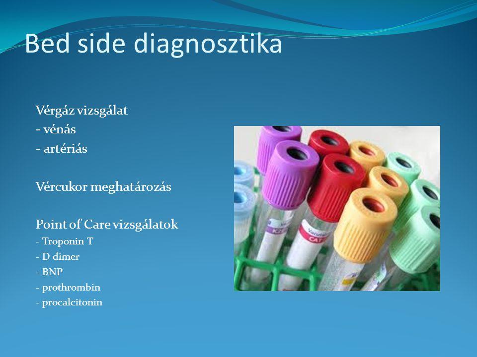Bed side diagnosztika Vérgáz vizsgálat - vénás - artériás