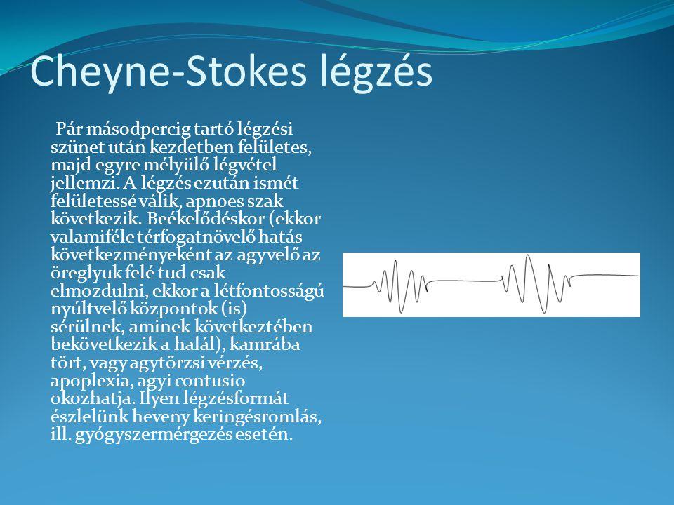Cheyne-Stokes légzés