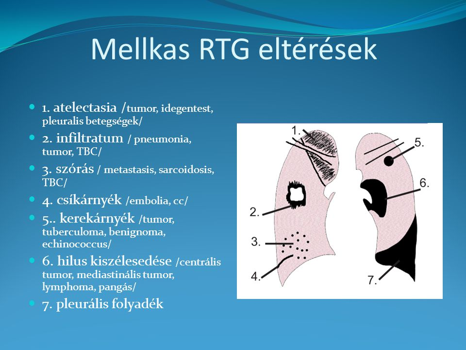 Mellkas RTG eltérések 1. atelectasia /tumor, idegentest, pleuralis betegségek/ 2. infiltratum / pneumonia, tumor, TBC/