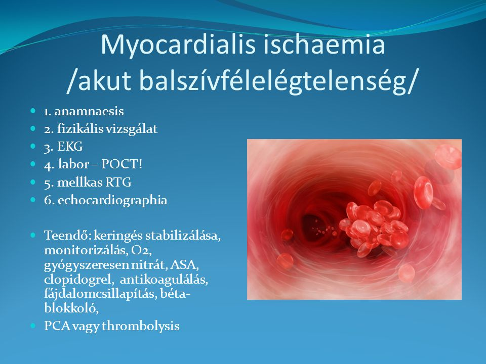 Myocardialis ischaemia /akut balszívfélelégtelenség/