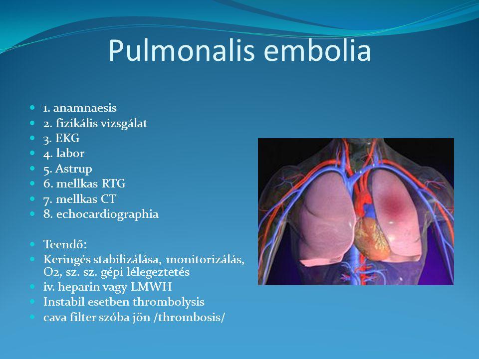 Pulmonalis embolia 1. anamnaesis 2. fizikális vizsgálat 3. EKG