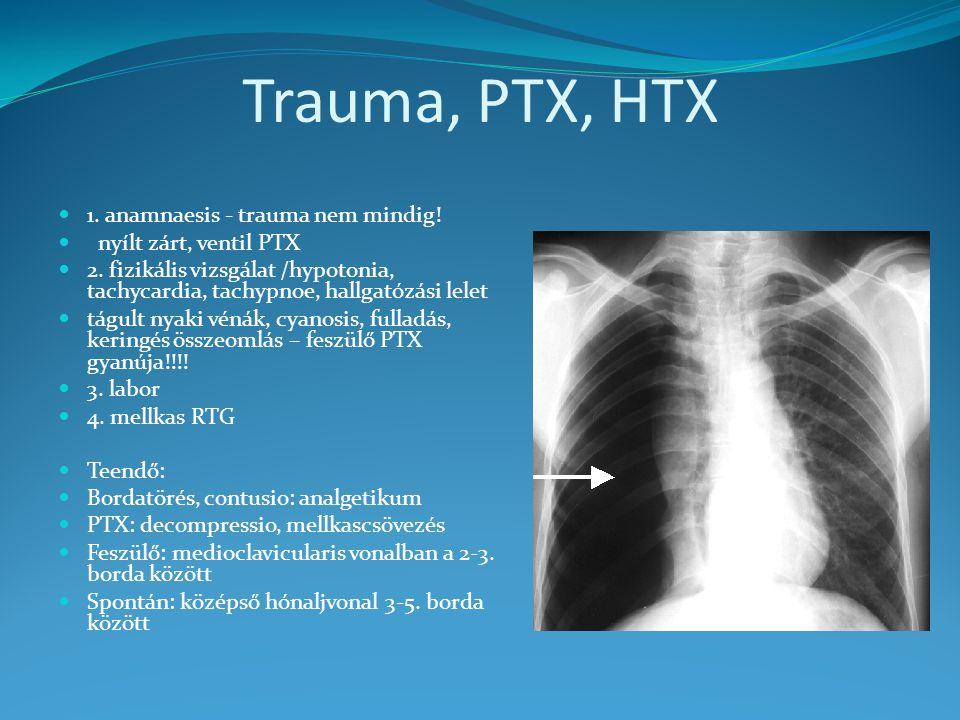 Trauma, PTX, HTX 1. anamnaesis - trauma nem mindig!