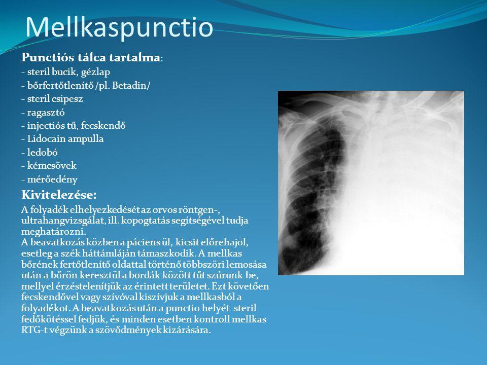 Mellkaspunctio Punctiós tálca tartalma: Kivitelezése: