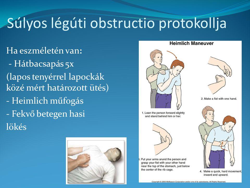 Súlyos légúti obstructio protokollja