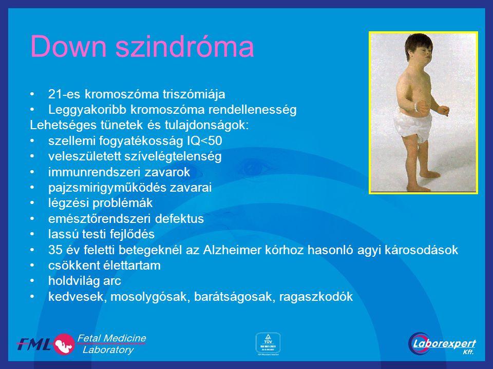 Down szindróma 21-es kromoszóma triszómiája