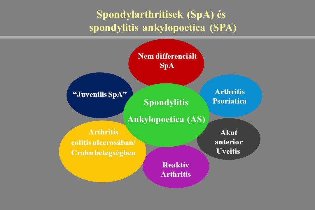 Spondylarthritisek (SpA) és spondylitis ankylopoetica (SPA)