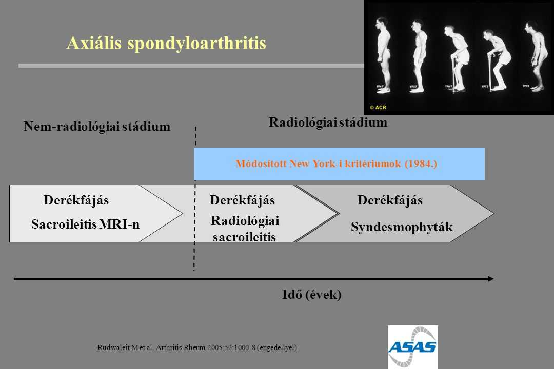 Axiális spondyloarthritis