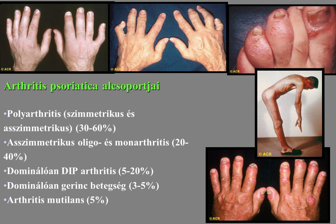Arthritis psoriatica alcsoportjai