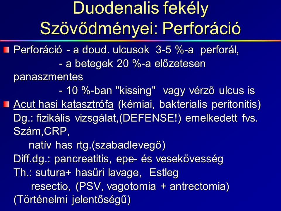 Duodenalis fekély Szövődményei: Perforáció