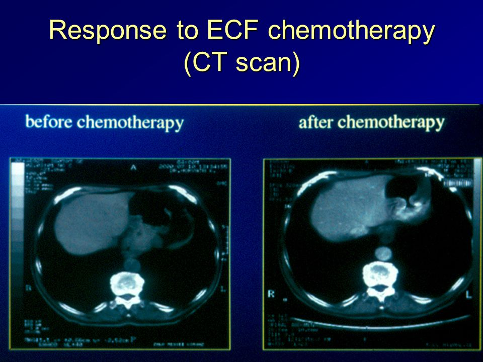 Response to ECF chemotherapy (CT scan)