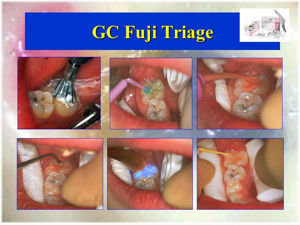 GC Fuji Triage