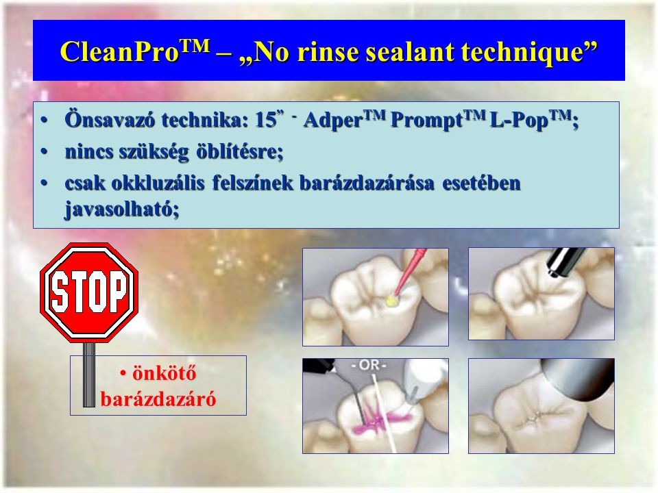 """CleanProTM – """"No rinse sealant technique"""