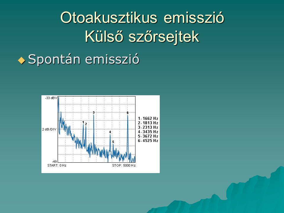 Otoakusztikus emisszió Külső szőrsejtek