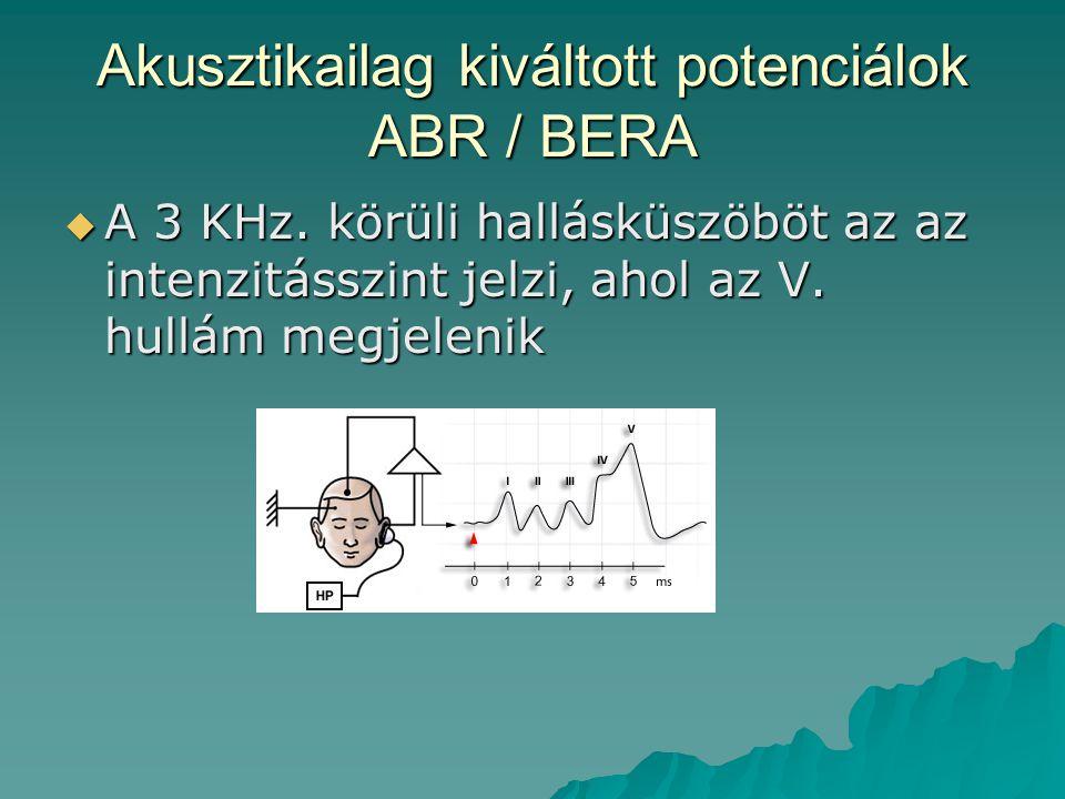 Akusztikailag kiváltott potenciálok ABR / BERA