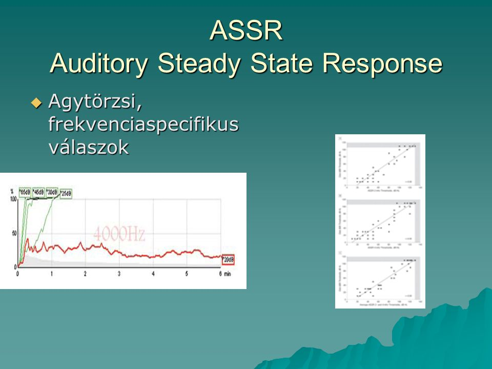 ASSR Auditory Steady State Response