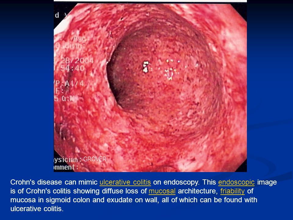 Crohn s disease can mimic ulcerative colitis on endoscopy