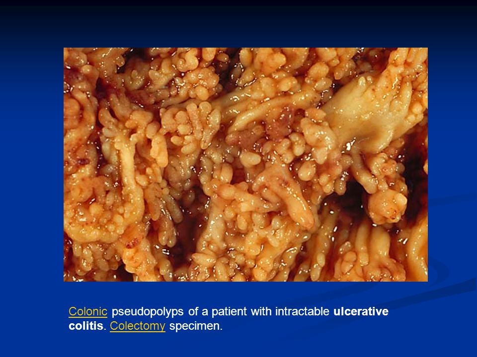 Colonic pseudopolyps of a patient with intractable ulcerative colitis