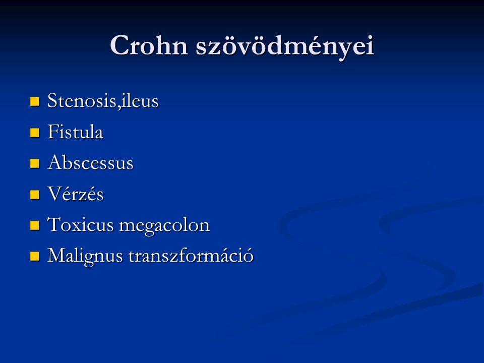 Crohn szövödményei Stenosis,ileus Fistula Abscessus Vérzés