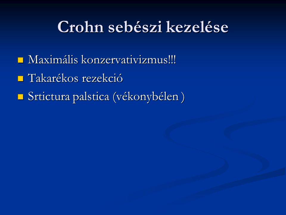 Crohn sebészi kezelése