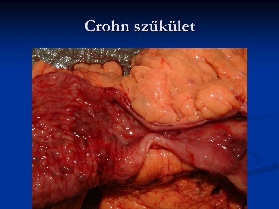 Crohn szűkület