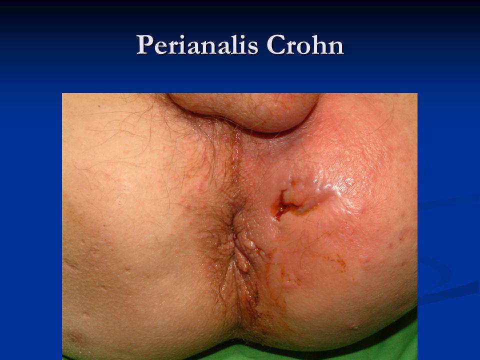 Perianalis Crohn