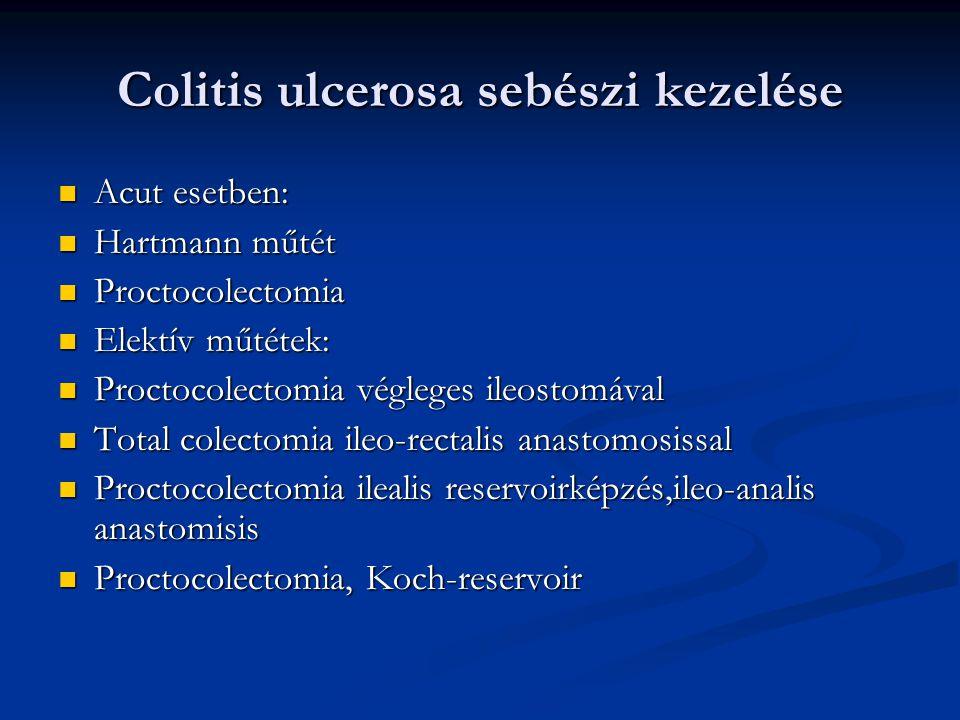 Colitis ulcerosa sebészi kezelése