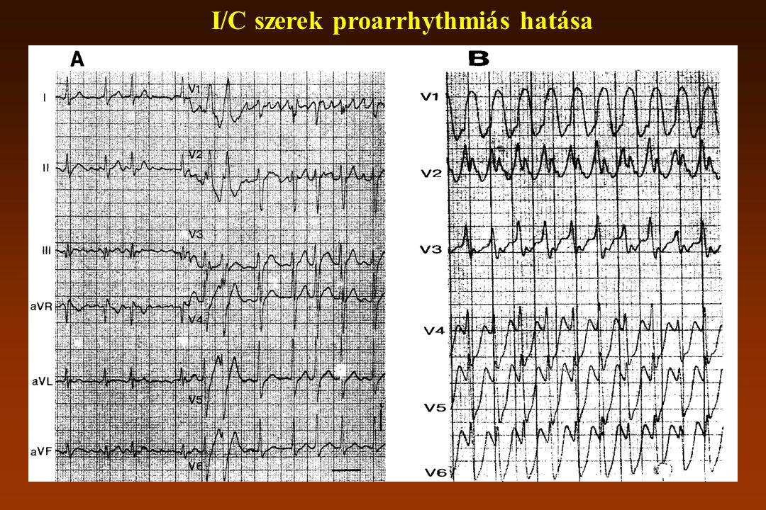I/C szerek proarrhythmiás hatása
