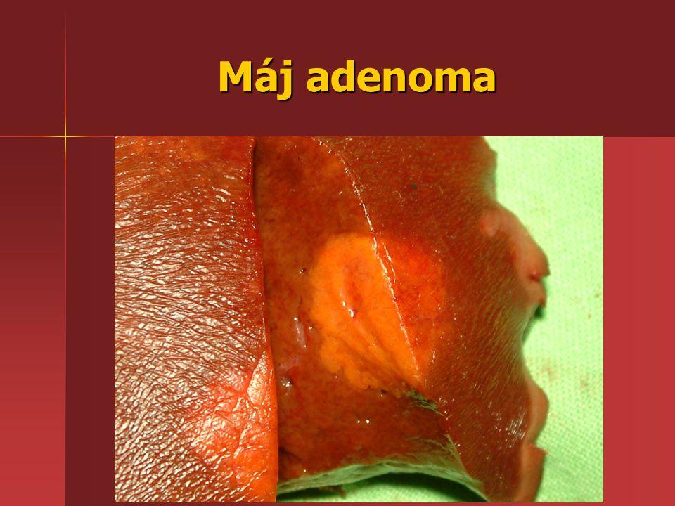 Máj adenoma