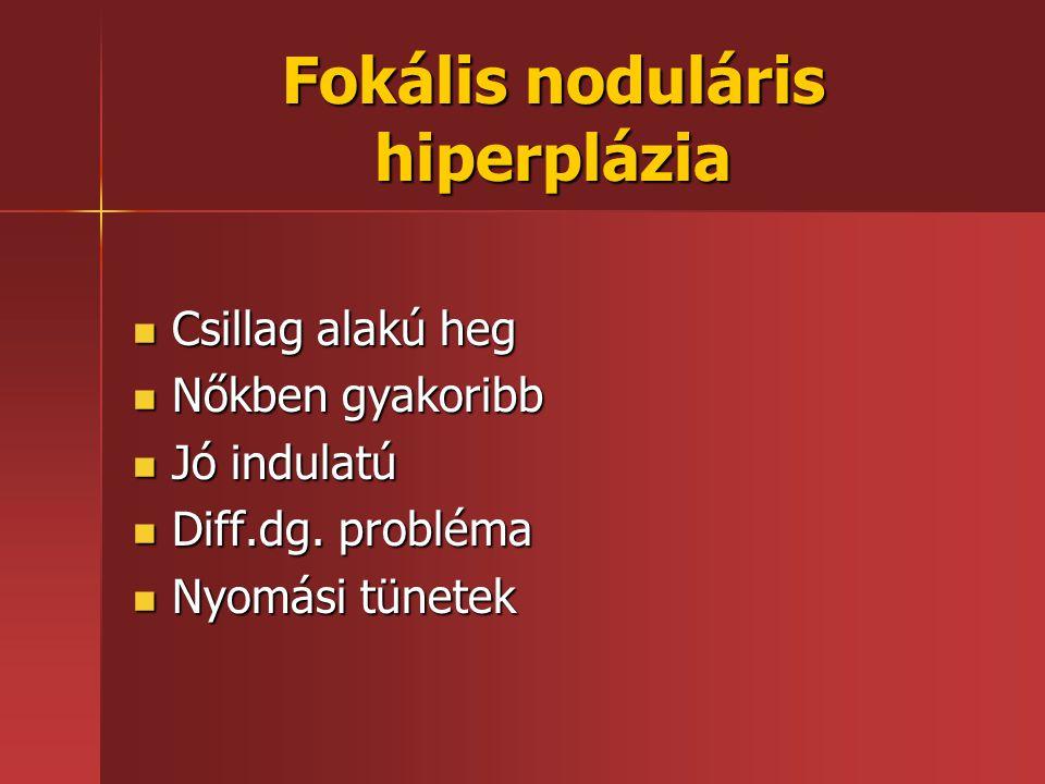 Fokális noduláris hiperplázia