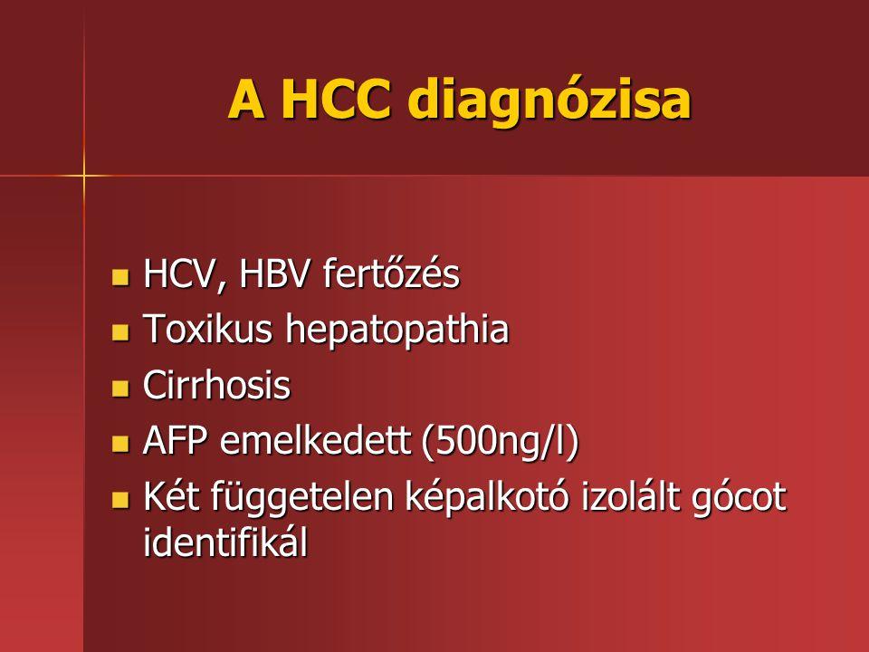 A HCC diagnózisa HCV, HBV fertőzés Toxikus hepatopathia Cirrhosis