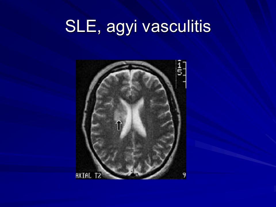 SLE, agyi vasculitis