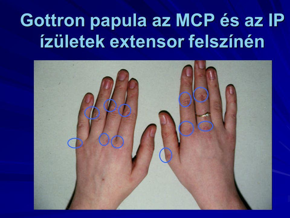 Gottron papula az MCP és az IP ízületek extensor felszínén
