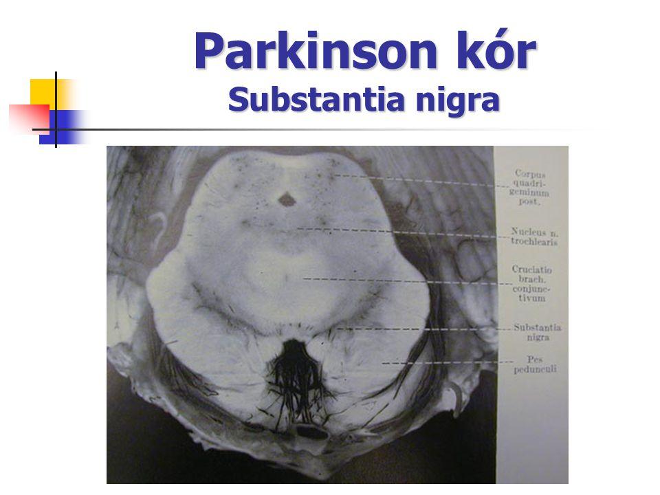 Parkinson kór Substantia nigra