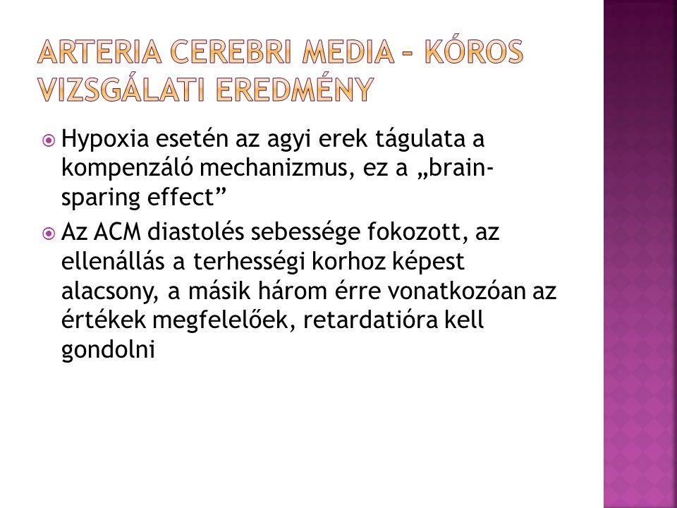Arteria cerebri media – kóros vizsgálati eredmény