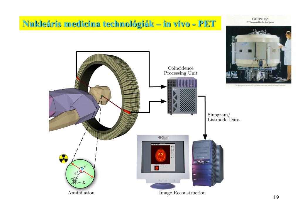 Nukleáris medicina technológiák – in vivo - PET