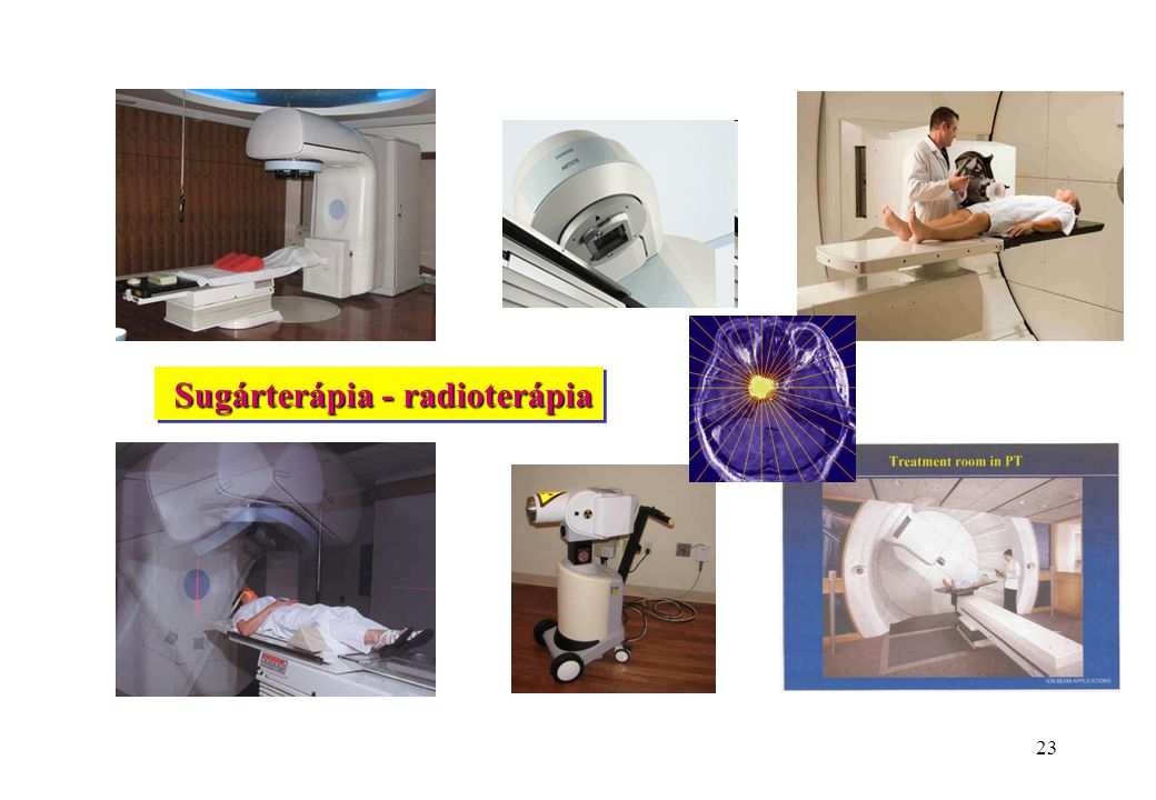 Sugárterápia - radioterápia