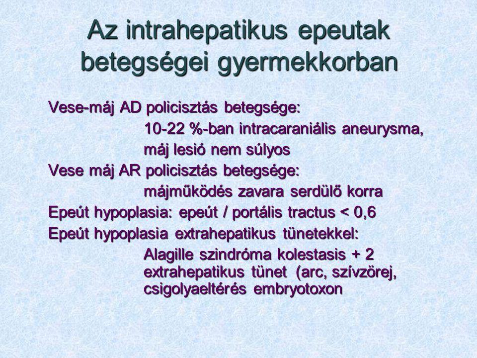 Az intrahepatikus epeutak betegségei gyermekkorban