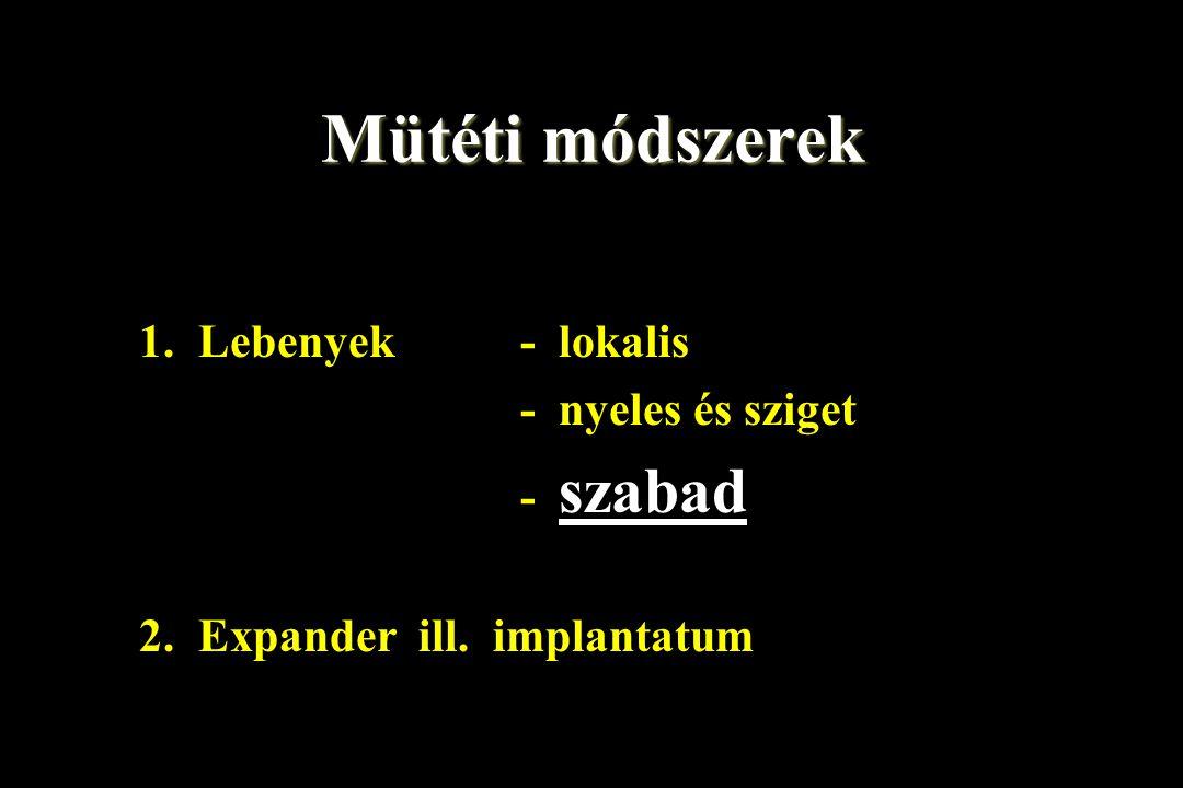 Mütéti módszerek 1. Lebenyek - lokalis - nyeles és sziget - szabad