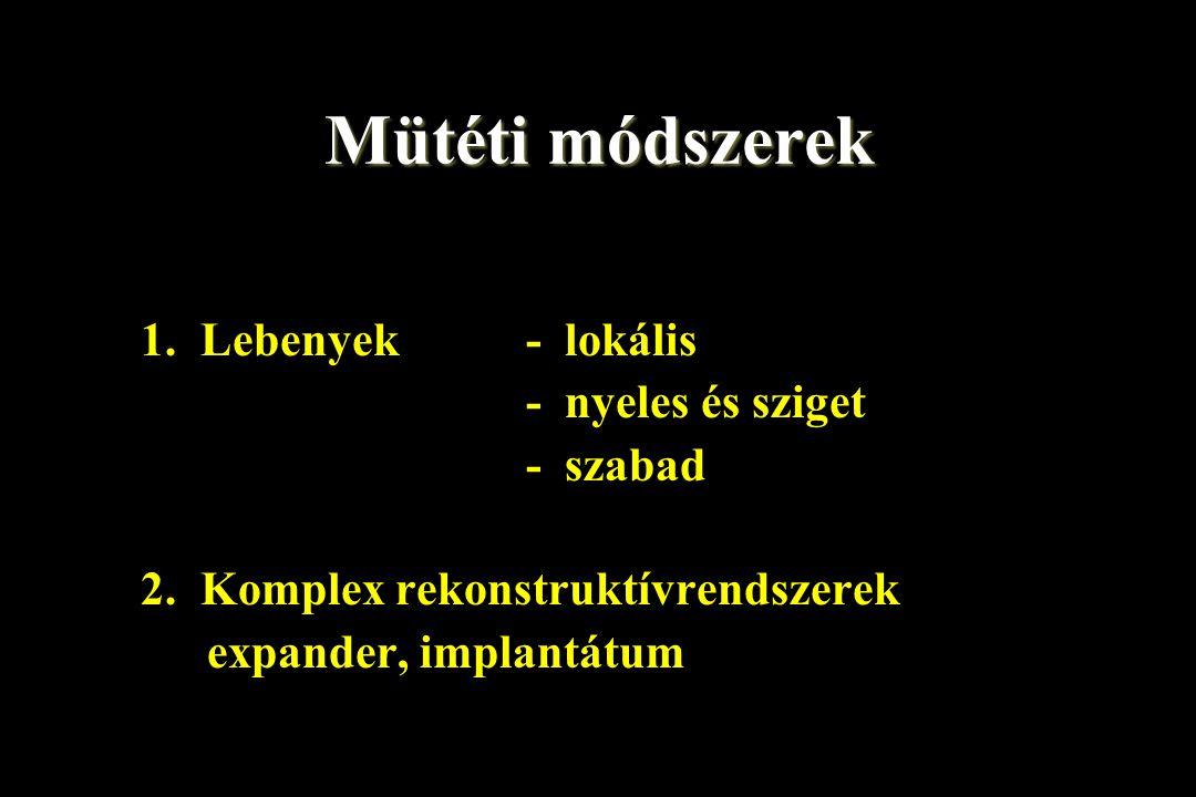 Mütéti módszerek 1. Lebenyek - lokális - nyeles és sziget - szabad