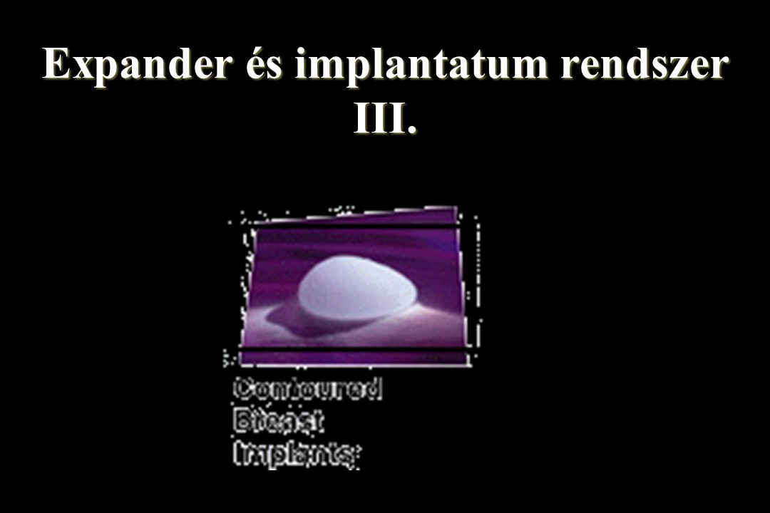 Expander és implantatum rendszer III.